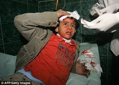 Shocking: A wounded Palestinian boy is treated by medics at Gaza City's al-Shifa hospital following Israeli strikes on January 10